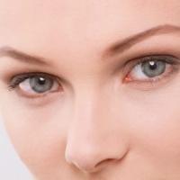 Blefaroplastia - Corectia Pleoapelor