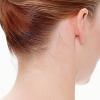 Otoplastie - Corectia Urechii